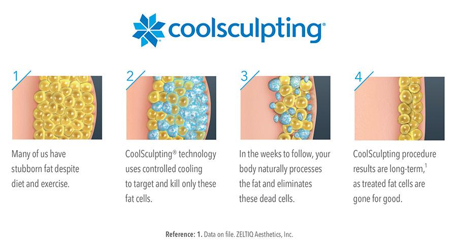 Coolsculpting-Process-Diagram-Horizontal-900-x-495